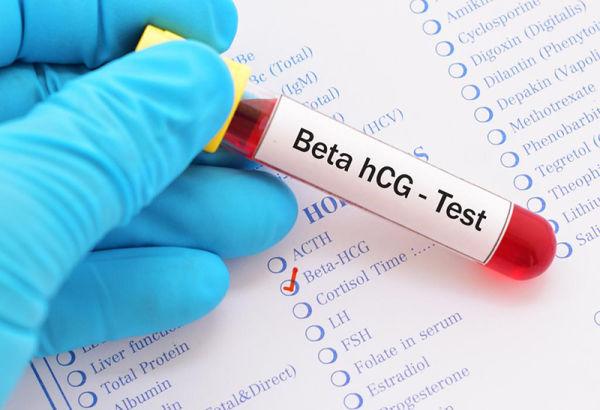 بهترین زمان انجام آزمایش خون بارداری
