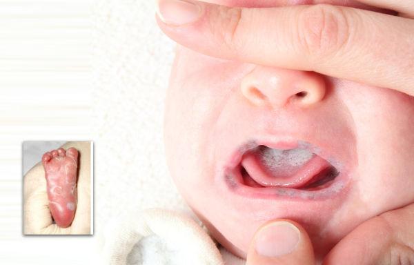 بیماری سفلیس در بارداری