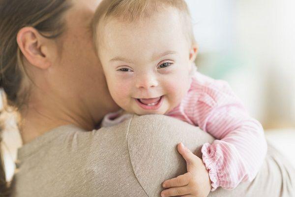 چطور به کودکی با سندرم داون شیر بدهید