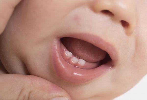 علائم دندان درآوردن نوزاد