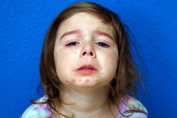 پسوریازیس در کودکان