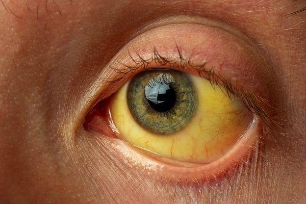 علت زردی چشم در کودکان