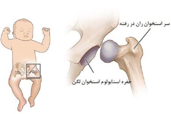 دیسپلازی لگن تکاملی نوزادان