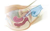 شیاف پروژسترون در بارداری و موارد مصرف آن