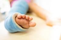 شکستگی استخوان در کودکان