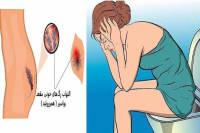 درمان خانگی بواسیر بعد از زایمان